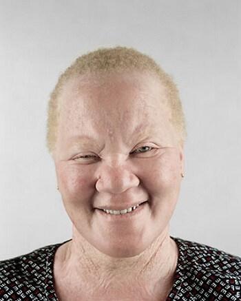 albinos-afrcanos-1