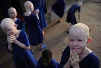 albinos-afrcanos-2