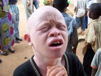 albinos-afrcanos-5