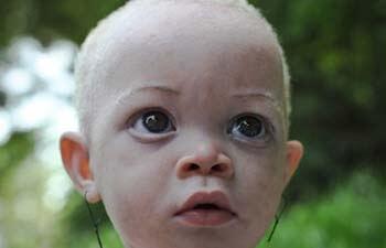 albinos-afrcanos-6