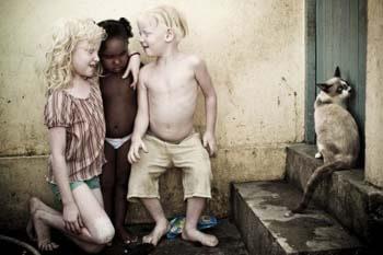 albinos-afrcanos-8